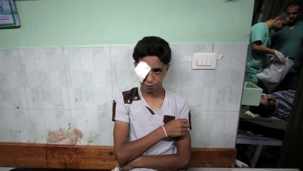 A Palestinian man rests after receiving treatment for injuries caused by an Israeli strike at a U.N. school in the Jebaliya refugee camp, at the Kamal Adwan hospital in Beit Lahiya, northern Gaza Strip, Wednesday, July 30, 2014. (AP Photo/Khalil Hamra)