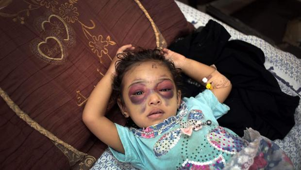 In this Thursday, July 24, 2014 photo, Nema Abu al-Foul, 2 , who was injured while playing with others in front of her family's house in the Al-Sabra neighborhood of Gaza City in an Israeli missile strike on July 19, recovers at Shifa hospital. The strike hit a nearby building, breaking her nose and fracturing her skull, her family said. (AP Photo/Khalil Hamra)