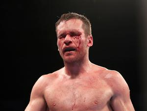 Luke Keeler sustained significant cuts during Saturday night's WBO European Middleweight Contest aginst Conrad Cummings at the SSE Arena, Belfast.