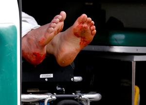 BOSTON, MA - APRIL 15:  Two blood stained feet of a man hangs outside an ambulance outside a medical tent located near the finish of the 117th Boston Marathon after two bombs exploded on the marathon route on April 15, 2013 in Boston, Massachusetts. Two people are confirmed dead and at least 23 injured after two explosions went off near the finish line to the marathon. (Photo by Jim Rogash/Getty Images)