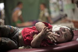 A Palestinian boy cries while receiving treatment for injuries caused by an Israeli strike at a U.N. school in Jebaliya refugee camp, at the Kamal Adwan hospital in Beit Lahiya, northern Gaza Strip, Wednesday, July 30, 2014. (AP Photo/Khalil Hamra)
