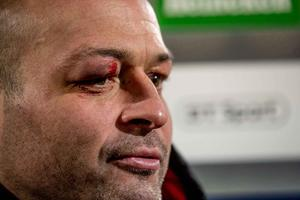 Rory Best shows off his battle scars after Ulster's win over Scarlets.