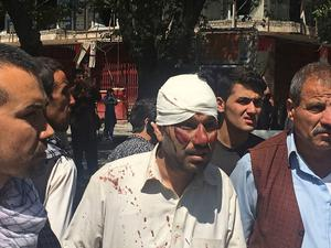 An injured man is seen after an explosion in Kabul, Afghanistan, Wednesday, May 31, 2017. Photo: Rahmat Gul, AP