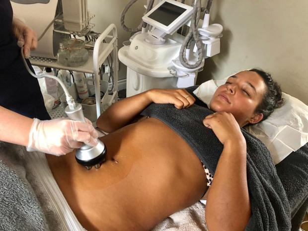 Anastasia receiving the cellulite treatment