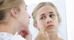 Facing facts: acne can be bane of a teenagers' lives