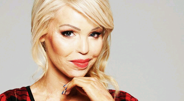 Facing the future: after six years of extensive surgery on her injuries Katie Piper is now looking forward to becoming a mum