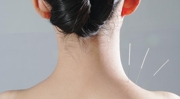 Skin deep: acupuncture may make you feel squeamish but many report good results