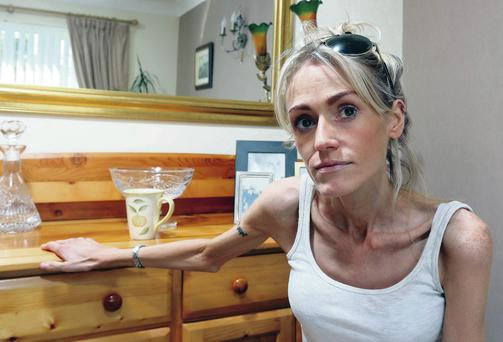 Fighting back: Cathie Kelly is determined to beat anorexia