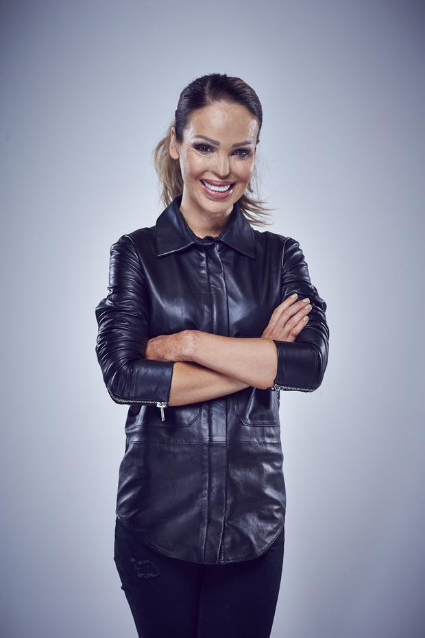 Katie Piper has refused to be defined by her burns