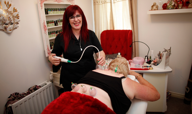 Alternative therapy: Jilly Adams from Lisburn carries out a cupping session