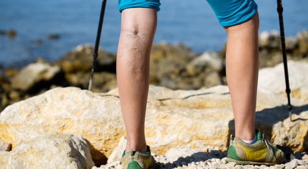 Work out: regular exercise is helpful but won't get rid of varicose veins