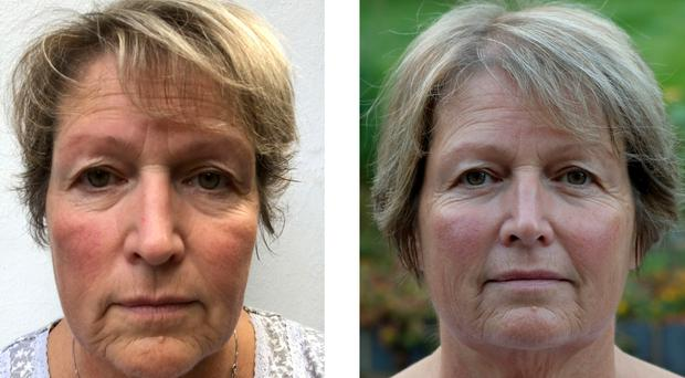 Face off: journalist Hannah Stephenson before (left) and after using JK7 24H Cream Day & Night Face Care