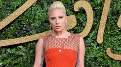 Debilitating illness: Lady Gaga (pictured) and Keira Knightley have both struggled with PTSD