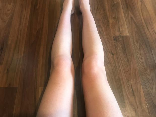 Liz Connor's legs before using Vita Liberata's new tan