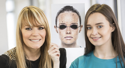 Skin deep: Michelle Young with Tracey Hall, Style Academy Model Agency founder, holding photos demonstrating some of the effects of UV exposure on your skin