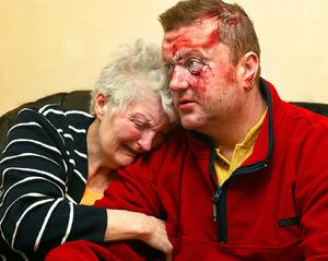 A mother cries on her son's shoulder as he relays the tale of his cruel beating by loyalist paramilitaries in Antrim. Picture by John Taggart
