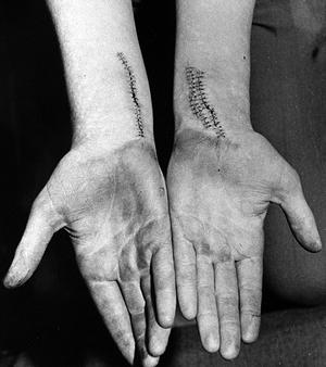 A man with slashed wrists after an attack by the Shankill Butchers. Pacemaker Press