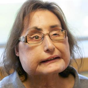 Connie Culp, who underwent the first face transplant surgery in the US