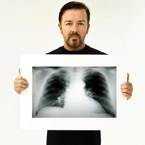 Ricky Gervais holding an X-ray of a healthy pair of lungs to help raise awareness about lung cancer