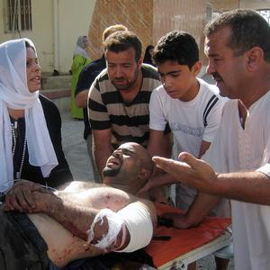 An injured man is brought to hospital after a bombing in Kirkuk, north of Baghdad (AP)