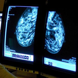 Identical twin sisters discovered they both have breast cancer