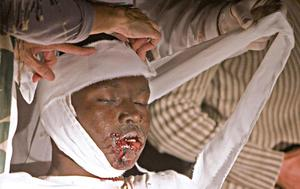 Injured people are tended to at Hotel Villa Creole in Port-au-Prince, Haiti on Tuesday Jan. 12, 2010