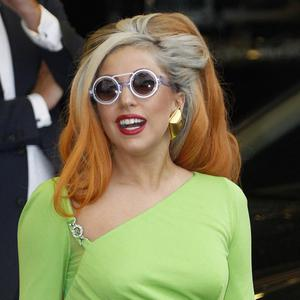 Lady Gaga was struck on the head by a pole during a gig