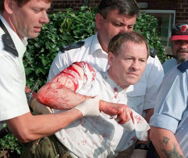 Snooker star Alex Higgins is taken to hospital with stab wounds after an incident involving a woman. 2008