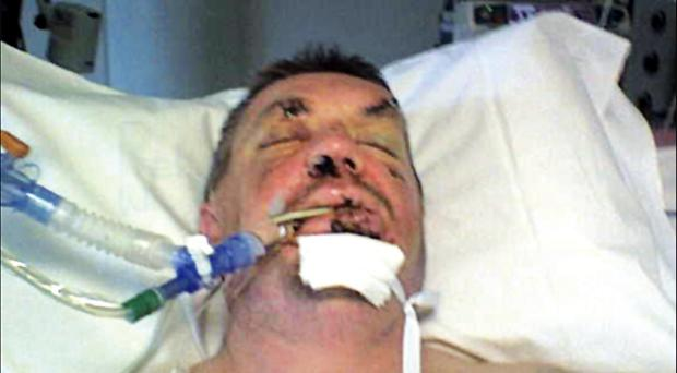 Damien Fleming critically ill on life support