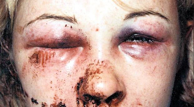 Horrific injuries sustained by Lynn McGall, one of Cahoon's victims
