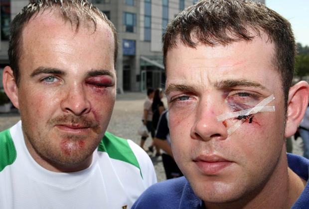 Matthew Ogle and Anthony Gavin, who were attacked outside the Dubliner Bar in Bratislava.