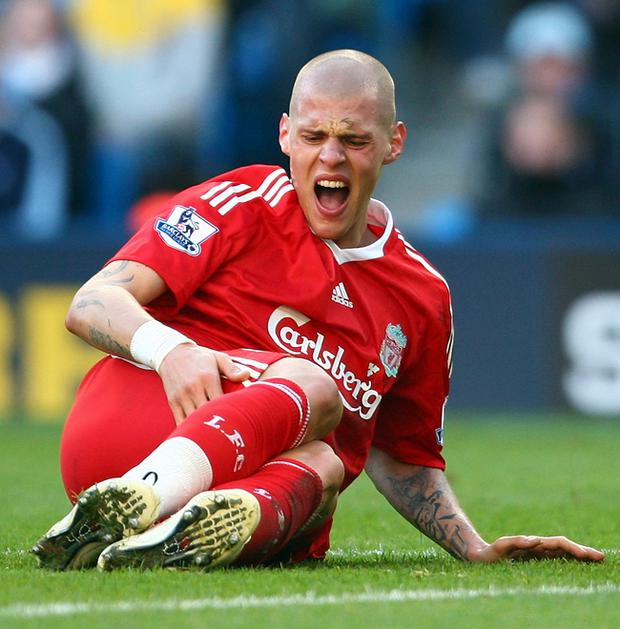 Martin Skrtel damaged his posterior cruciate ligament in his right knee during Liverpool's victory over Manchester City on Sunday