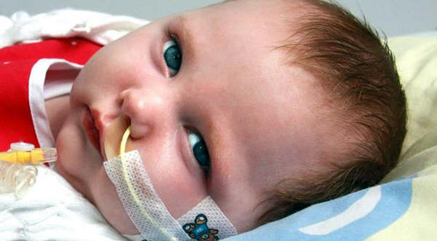 Little Katie Maguire suffers from a rare form of epilepsy which means she cannot see, swallow or smile