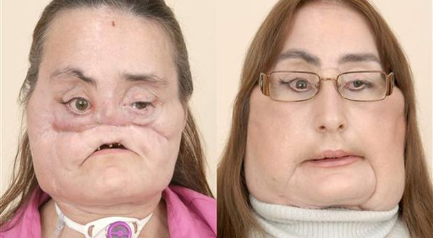 This is a photo of Connie Culp, after an injury to her face, left, and then as she appears today. Culp is underwent the first face transplant surgery the United States at the Cleveland Clinic in December 2008. Culp spoke to the media at a news conference at the Cleveland Clinic in Cleveland, on Tuesday, May 5, 2009. The 46-year-old mother of two lost most of the midsection of her face to a gunshot in 2004. (AP Photo/Cleveland Clinic-HO)