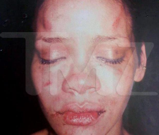 This photo of pop star Rihanna which was according to TMZ,