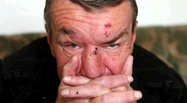 Damien Fleming has been attacked by sectarian thugs for a second time