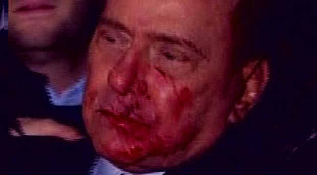 Hospital officials say Silvio Berlusconi must stay in hospital until at least Wednesday (AP)