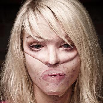 Acid burns victim Katie Piper to deliver Channel 4's alternative to the Queen's Speech (C4)