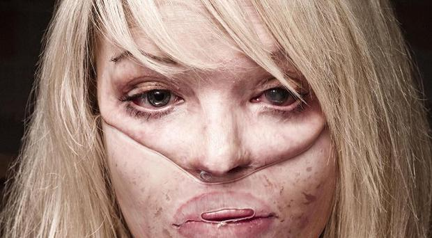 Acid attack victim gives message - BelfastTelegraph.co.uk