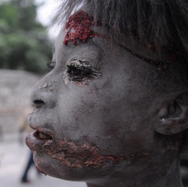 A victim of the massive earthquake in Haiti on a street in Port-au-Prince