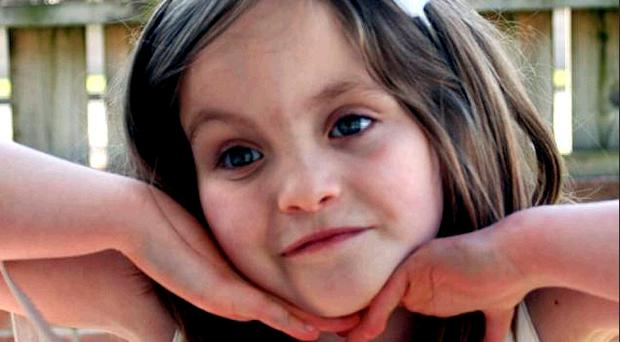 Omagh girl Rebecca McGillin was born with a deformed hand and thin lips