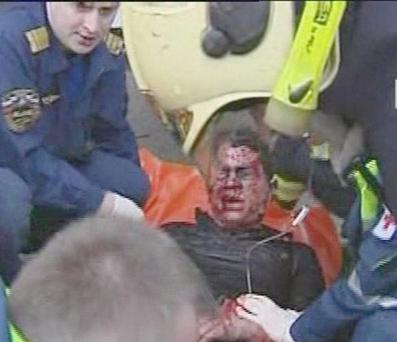 An injured man is treated outside Park Kultury station in central Moscow after a bomb blast Monday March 29 2010.