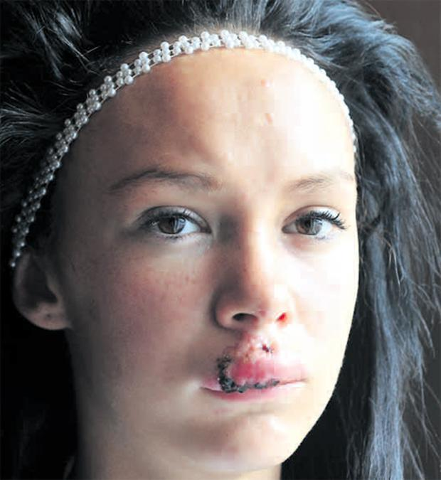 Shannon Smyth (13) faces reconstructive surgery on her face after she was hit with a brick in a suspected sectarian attack