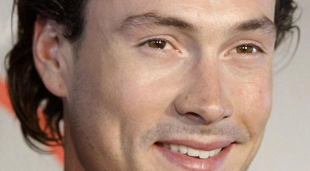 Chris Klein has been charged with drink driving offence