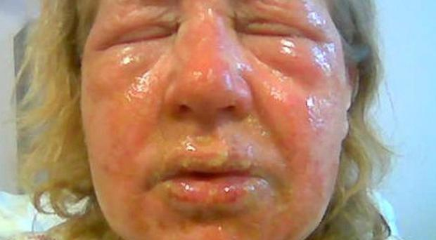 Sheila Insch suffered burns to her face after using a sink drain cleaner which exploded at her home