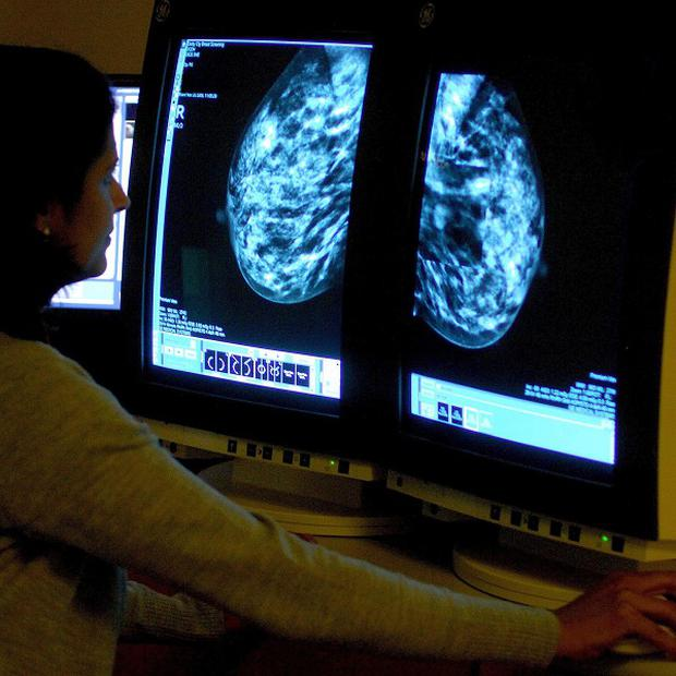 Houseproud women may be at greater risk of breast cancer, research suggests