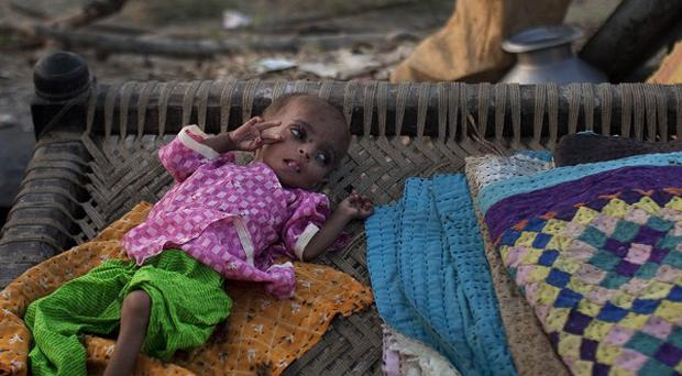 A malnourished child lies at a roadside amid devastating flooding in Pakistan