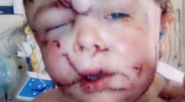 Two-year-old Joshua Mann was attacked by his grandmother's collie