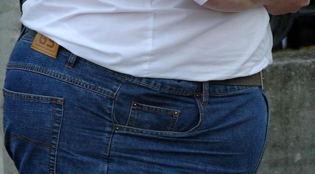 A man who lost half his weight after gastric band surgery is to sue the NHS