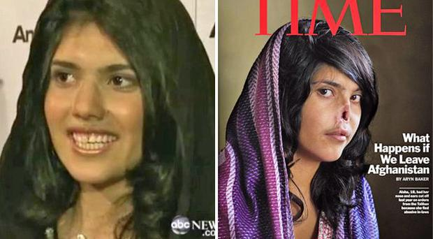 Aisha, left, after her reconstructive surgery; on the cover of Time magazine in August